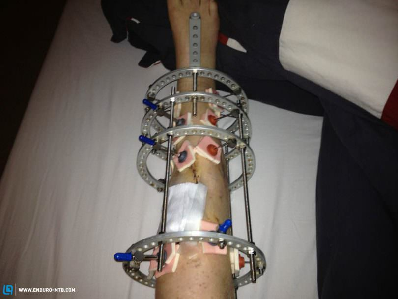 One of the many cages fitted to strengthen the leg.